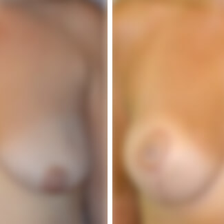 before and after breast augmentation and lift photo blurred for decency.