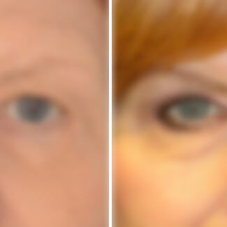 before and after blepharoplasty photo blurred for decency.