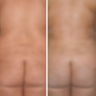 before and after brazilian butt lift photo blurred for decency.