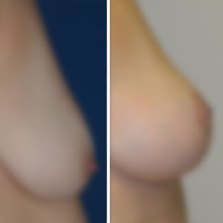 before and after breast lift photo blurred for decency.