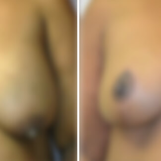 before and after breast reduction photo blurred for decency.