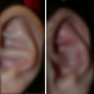 before and after otoplasty ear reshaping photo blurred for decency.
