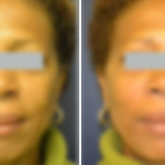 before and after fillers photo blurred for decency.