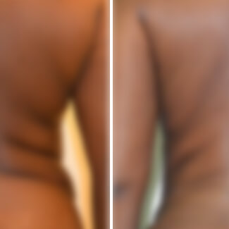 before and after liposuction photo blurred for decency.