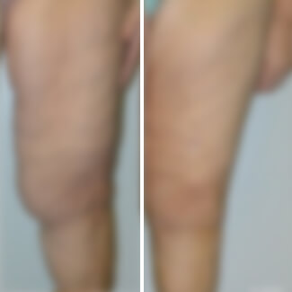 before and after thigh lift photo blurred for decency.