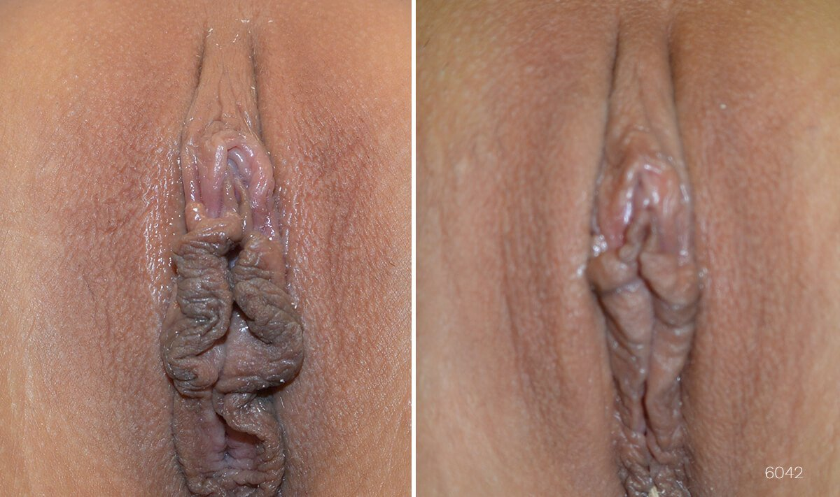 Before and after pictures of woman who has had labiaplasty.