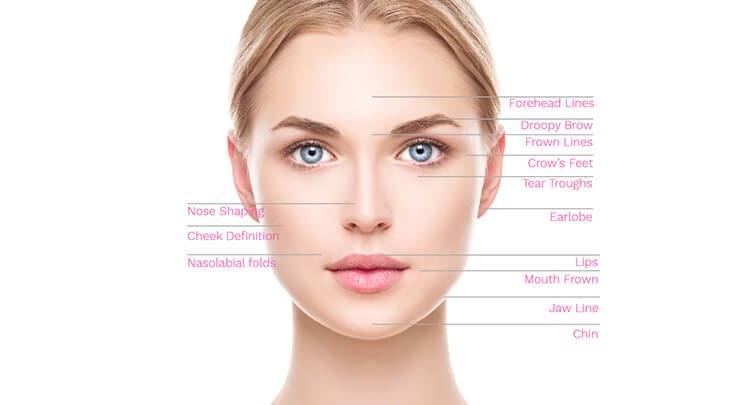 Diagram showing the areas that can be treated with injectable fillers on the female face.